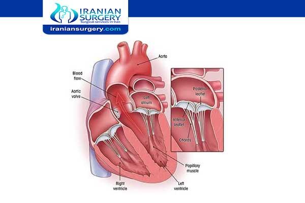 عملیة تغییر صمام القلب المیترالي