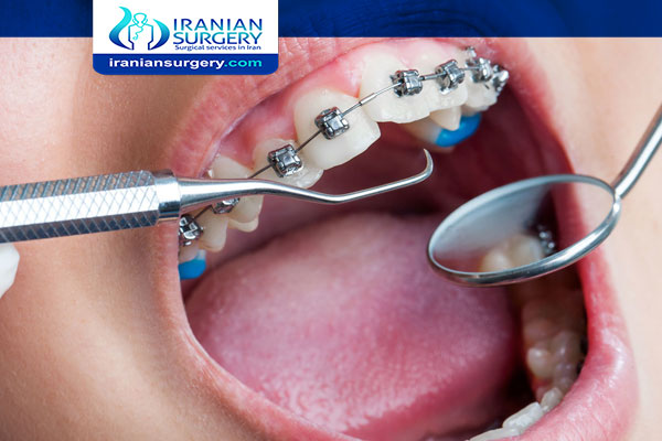 تقویم الاسنان في ايران