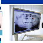Dental X-ray (OPG)