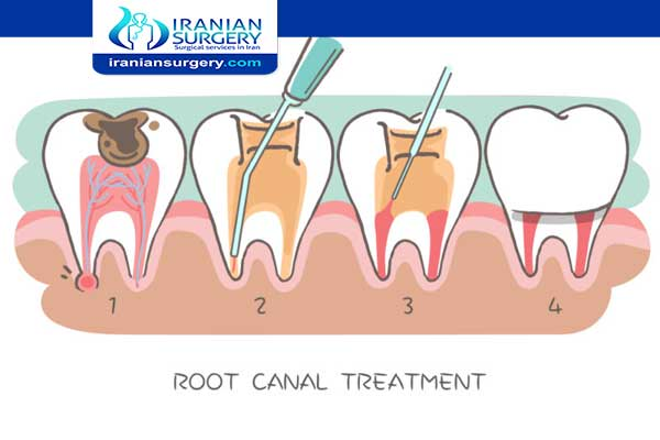 Root canal pain | Root canal pain level | Throbbing pain after root canal