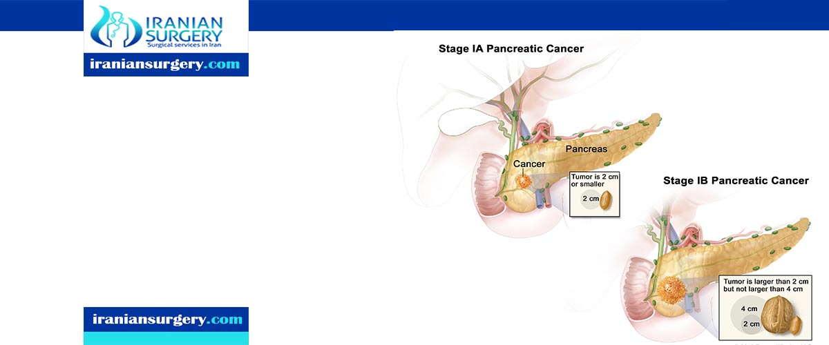 Pancreatic Cancer Treatment in Iran