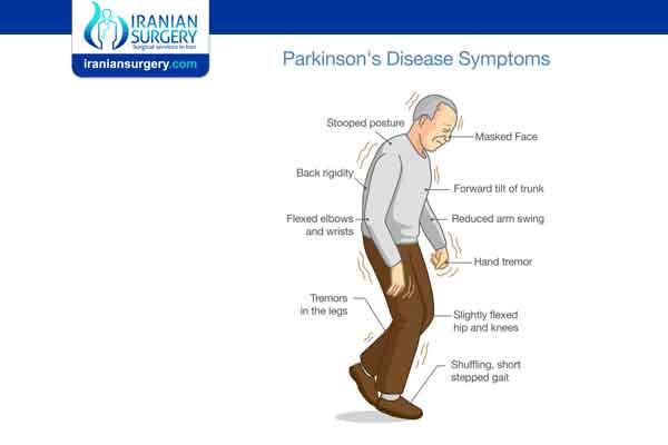 Parkinson's disease stages