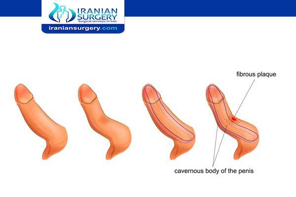 Penile curvature surgery
