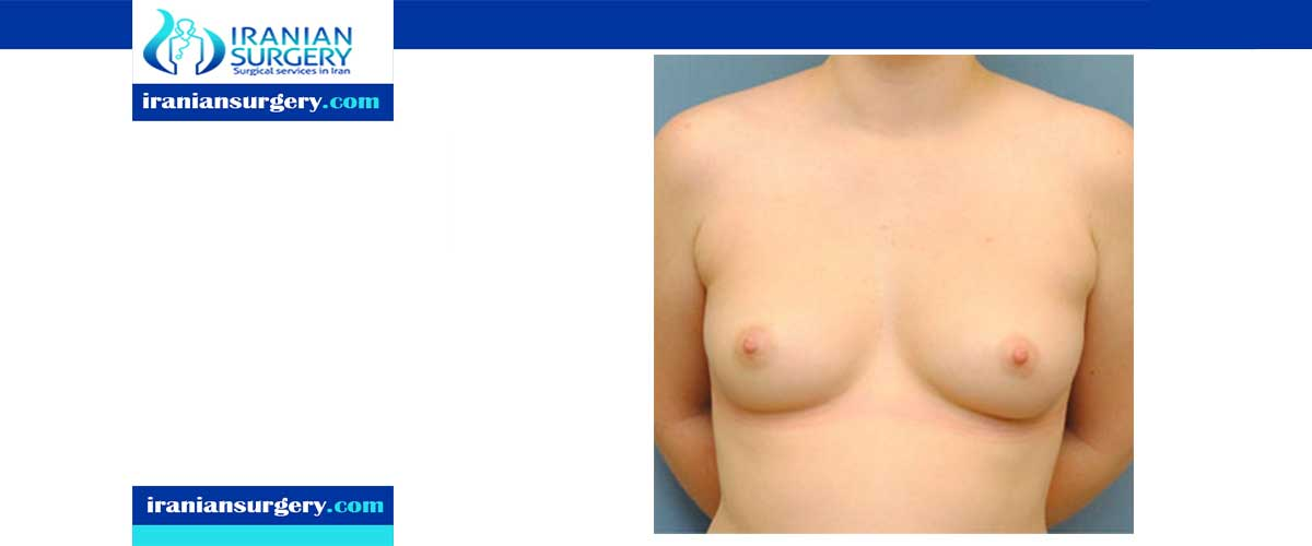 Periareolar top surgery