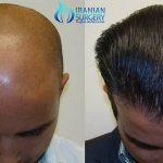 PreHair Transplant procedure in iran