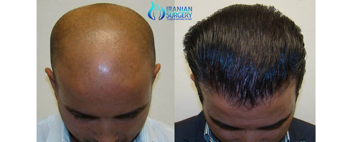 Pre Hair Transplant procedure in iran