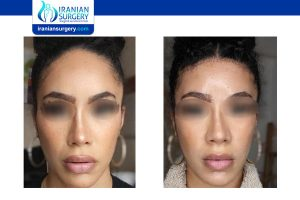 revision rhinoplasty in iran