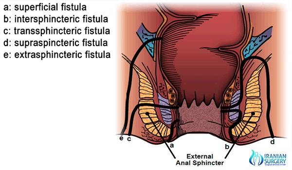 rectal abscess treatment in iran