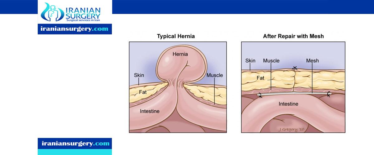 Repairing an umbilical hernia
