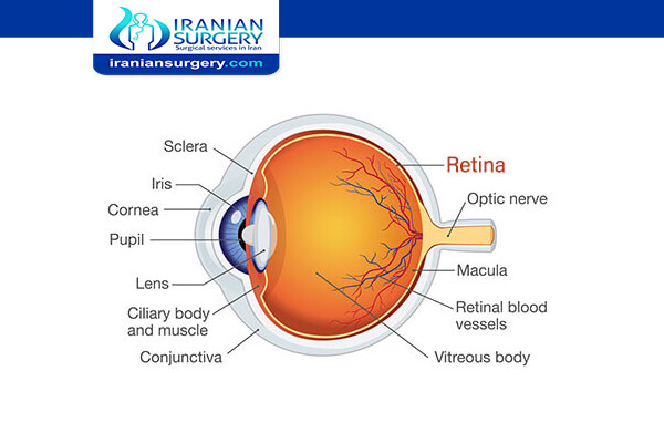 Retinal detachment in Iran