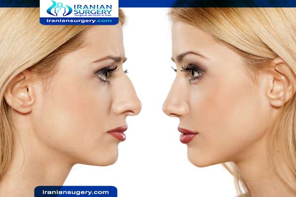 Can you die from rhinoplasty?