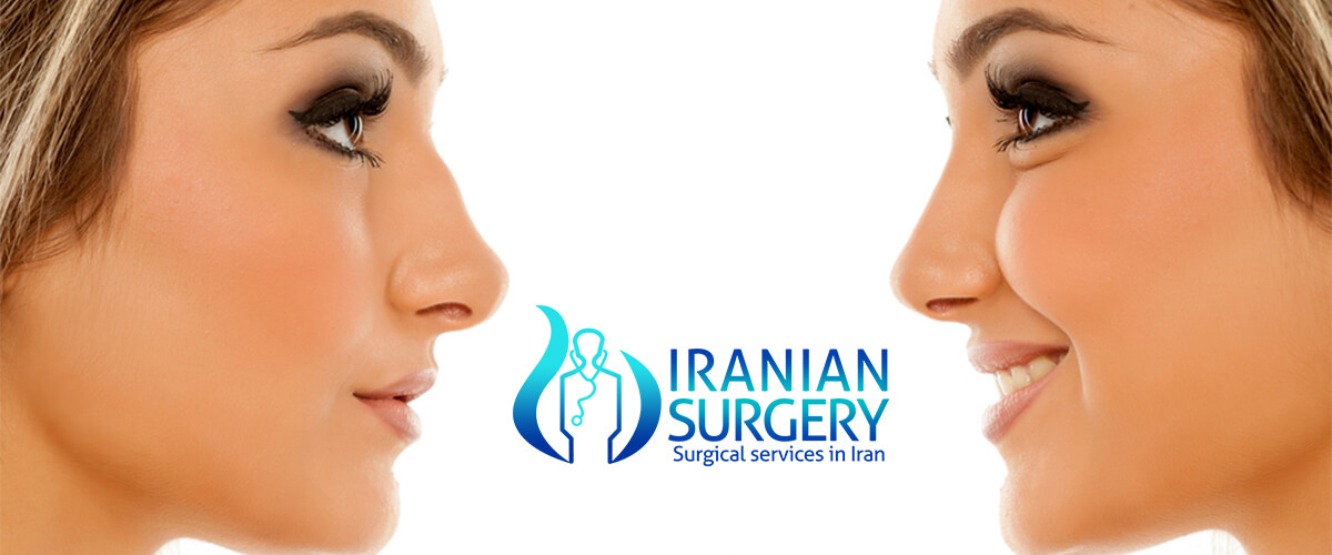 Rhinoplasty Cost in iran