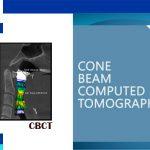 Dental Cone Beam CT