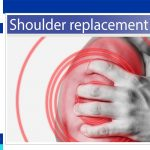 Shoulder Replacement Surgery Success Rate