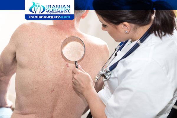 سرطان الجلد الحرشفي