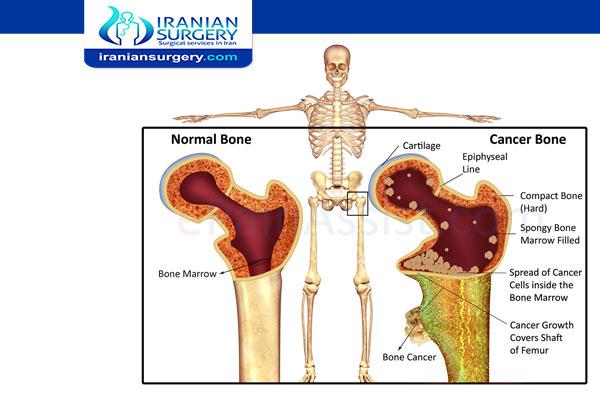 مراحل سرطان العظام