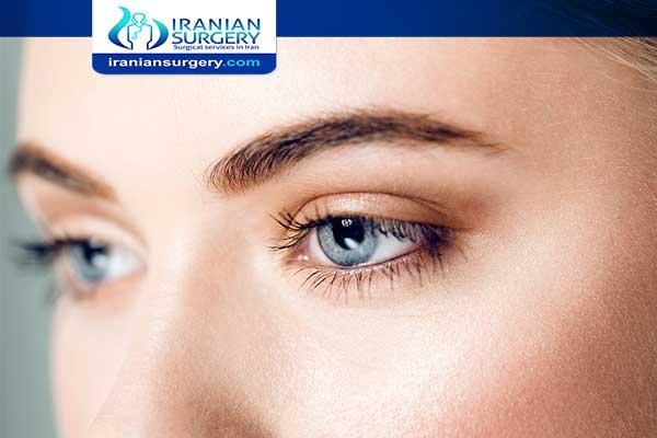 Strabismus surgery in iran