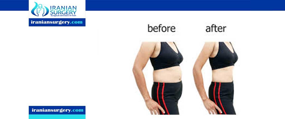 Super wet liposuction blood loss