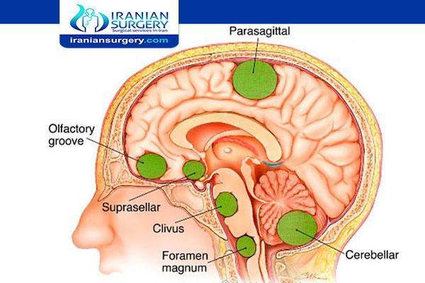 أعراض ورم الرأس الحمید