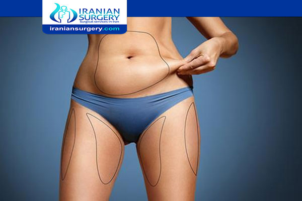 TYPES OF LIPOSUCTION
