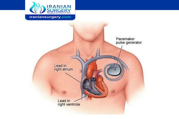تکلفة جهاز تنظيم ضربات القلب