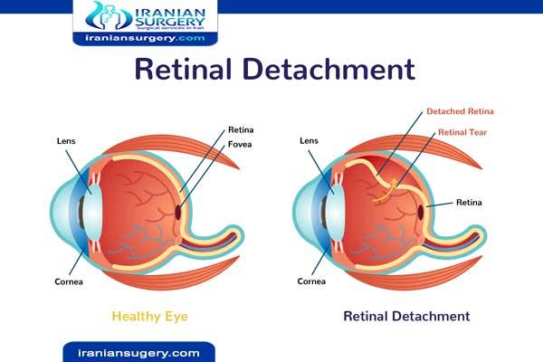 Eye retinal treatment
