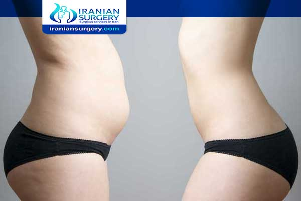 4 Weeks After Vaser Lipo Treatment Vaser Lipo Recovery Iranian Surgery