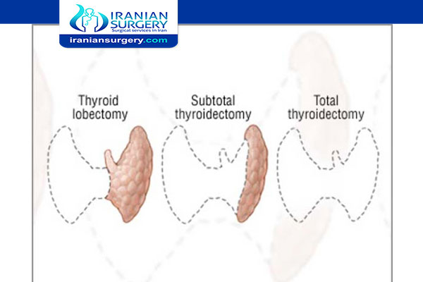 Types of Thyroidectomy