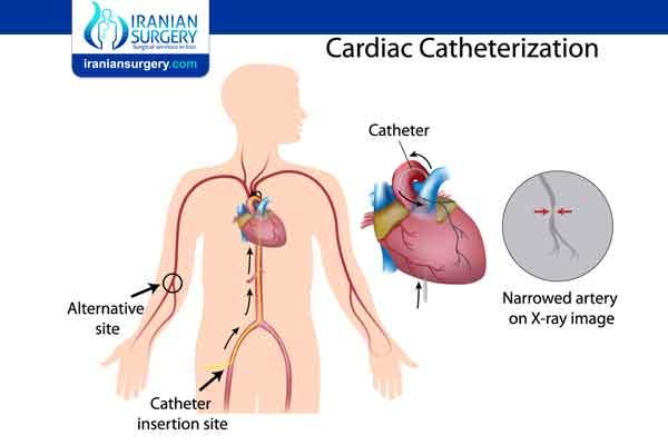 انواع قسطرة القلب