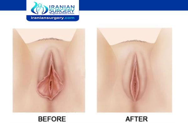 Virgin tightening surgery