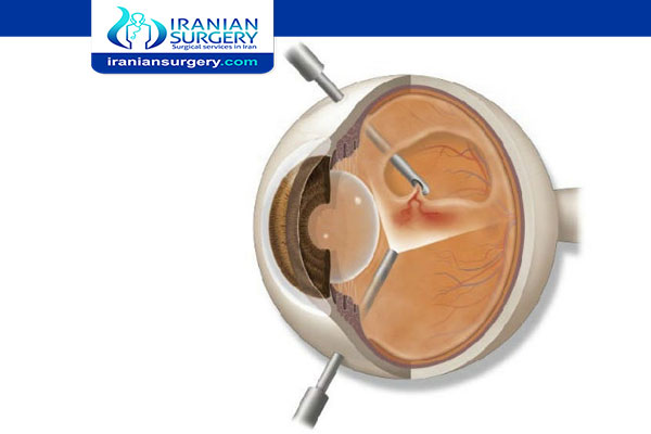 Vitrectomy surgery in Iran