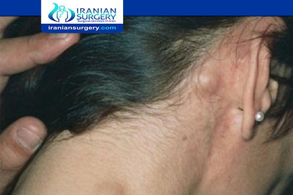 أعراض سرطان خلف الأذن أعراض سرطان الغدد اللمفاوية خلف الأذن ما هي سرطان خلف الأذن