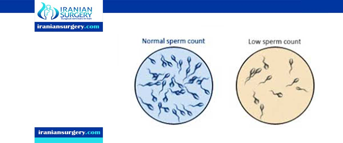 What is the lowest sperm count for IVF