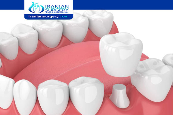 What's In Dental Glue For Crowns?