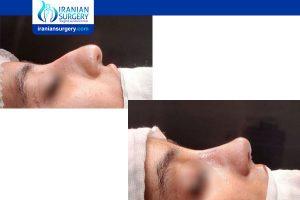 rhinoplasty in iran vs turkey