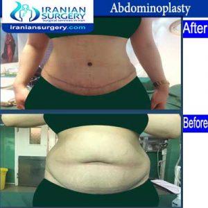 dr fattahi Woman Abdominoplasty