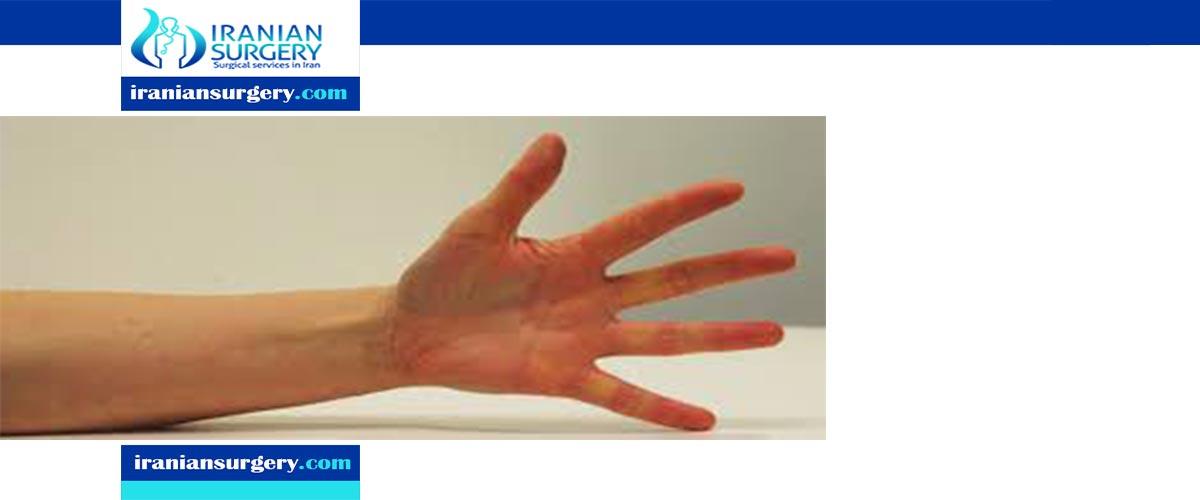 Wrist bone Removal Surgery