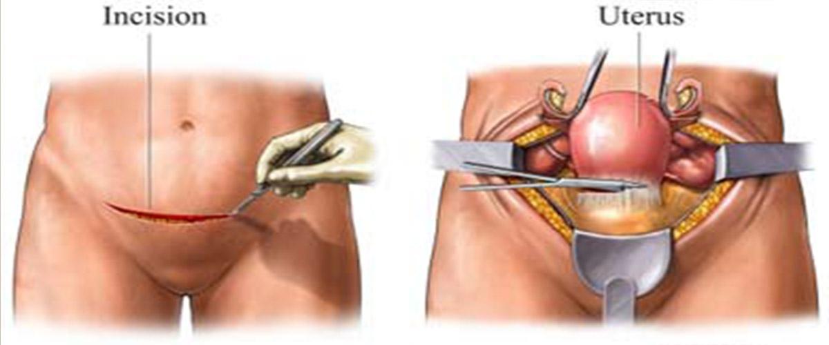abdominal hysterectomy procedure step by step iran