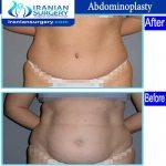dr Ein abadi abdominoplasty