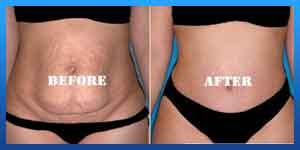 هل عملیة شفط الدهون تؤثر علي الحمل؟