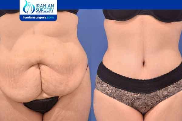 عملية شفط الدهون البطن
