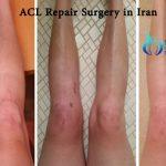 ACL repair surgery in Iran