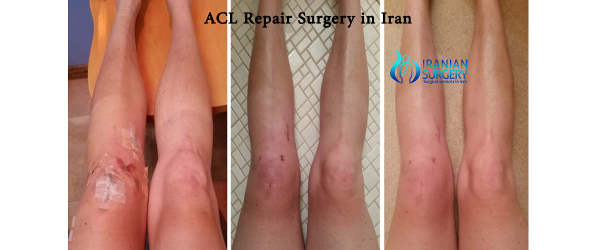 acl repair surgery cost in iran