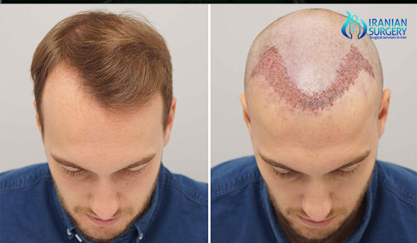 after hair transplant in iran