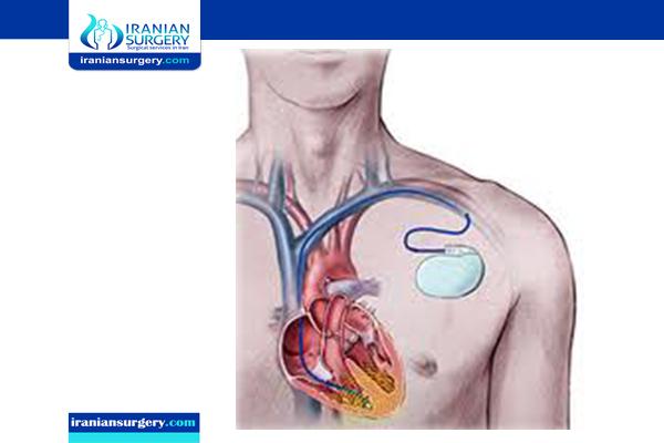 heart arrhythmia treatment