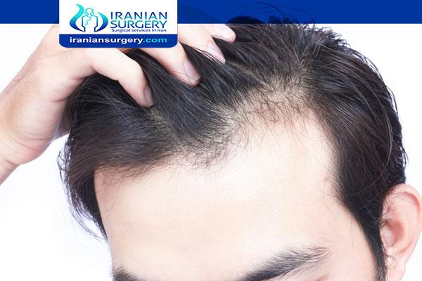 اسباب عدم نمو الشعر عند الرجال