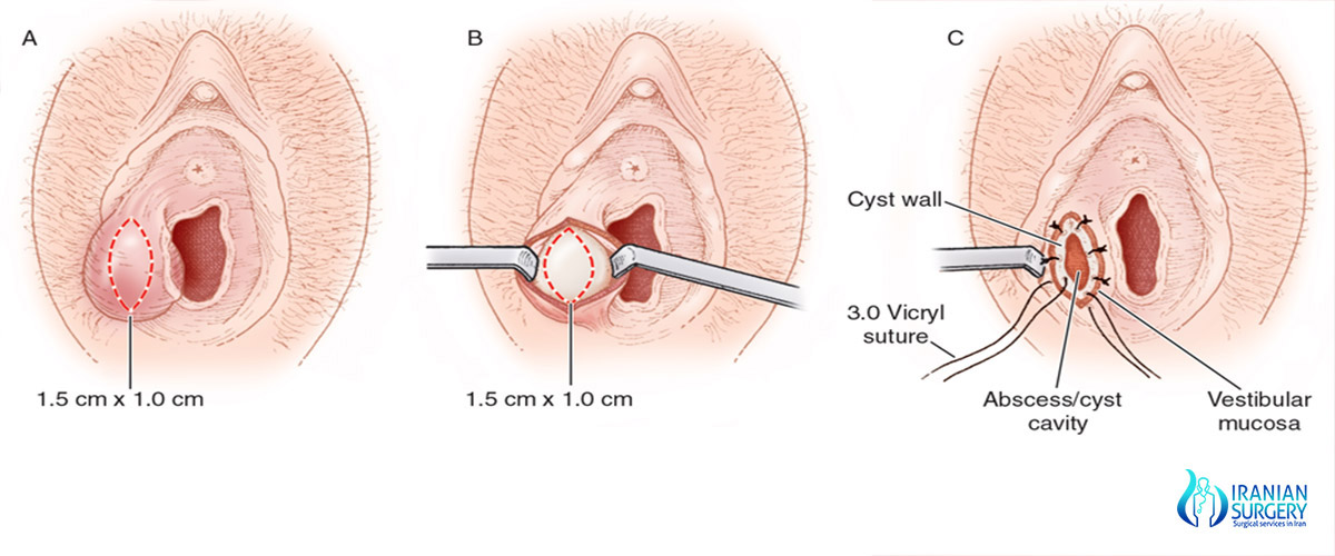 Bartholin cyst removal surgery in iran