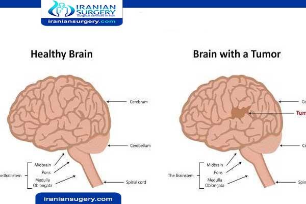 اعراض سرطان الدماغ في مراحله الاخيرة ما هي أعراض المبکرة سرطان الدماغ في مراحله الأخيرة