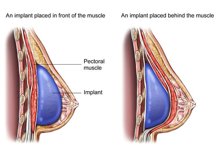 breast augmentation cost iran