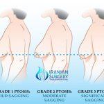 Breast Lift In Iran